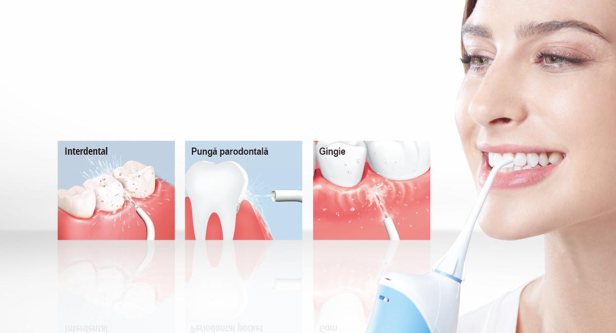 Prețul tratamentului canalului radicular este - 0 per dinte